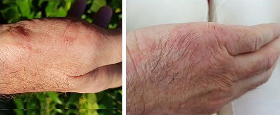 My eczema of 30 years healed after using Matrix Drops products