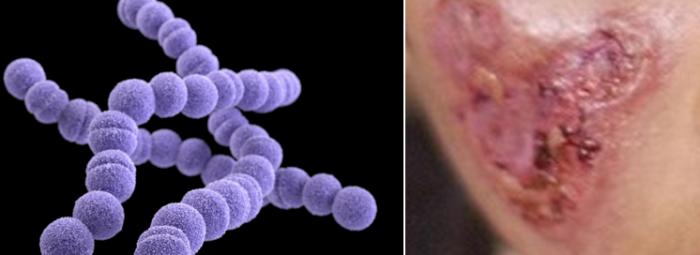 Streptococcus pyogenes - Húsevő baktérium megállítása a 676-os Matrix Drops áldásán keresztül