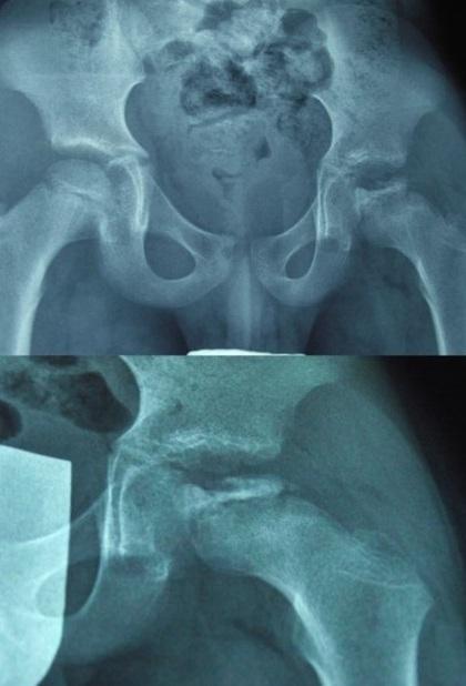 2016. március - Molnár-Sós Kund röntgenfelvételei