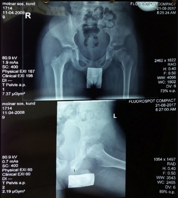 2017. augusztus 21. -  Molnár-Sós Kund röntgenfelvételei